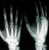 Le ossa tornano a posto con un'iniezione